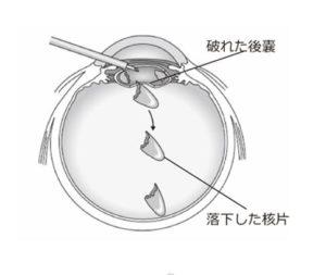水晶体核落下